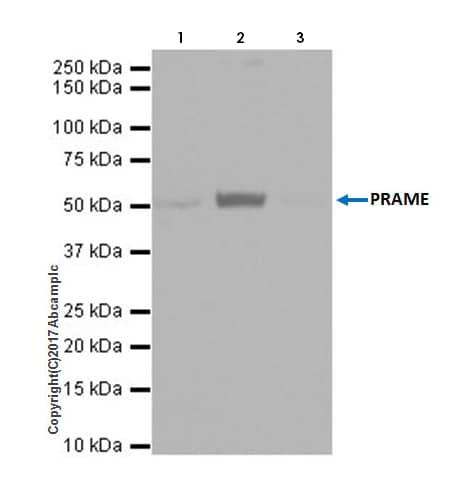 Immunoprecipitation - Anti-PRAME antibody [EPR20330] - BSA and Azide free (ab232571)