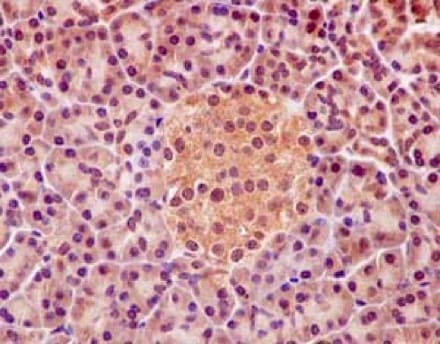 Immunohistochemistry (Formalin/PFA-fixed paraffin-embedded sections) - Anti-PHF1 antibody [EPR14222] - BSA and Azide free (ab232601)