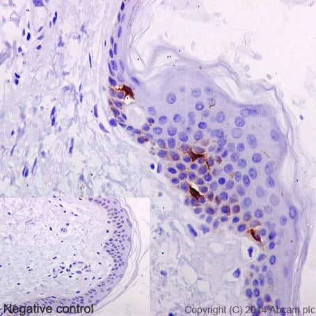 Immunohistochemistry (Formalin/PFA-fixed paraffin-embedded sections) - Anti-Langerin antibody [EPR15863] - BSA and Azide free (ab232603)
