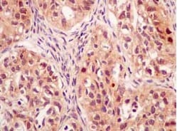 Immunohistochemistry (Formalin/PFA-fixed paraffin-embedded sections) - Anti-Mad2L2/REV7 antibody [EPR13657] - BSA and Azide free (ab232620)