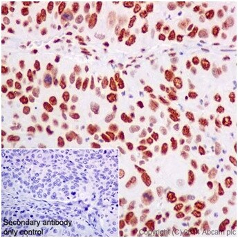 Immunohistochemistry (Formalin/PFA-fixed paraffin-embedded sections) - Anti-ZMYND8 antibody [EPR16924] - BSA and Azide free (ab232622)