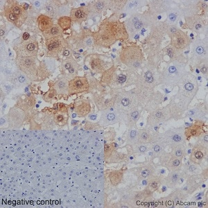 Immunohistochemistry (Formalin/PFA-fixed paraffin-embedded sections) - Anti-AKR1B10 antibody [EPR14421] - BSA and Azide free (ab232623)