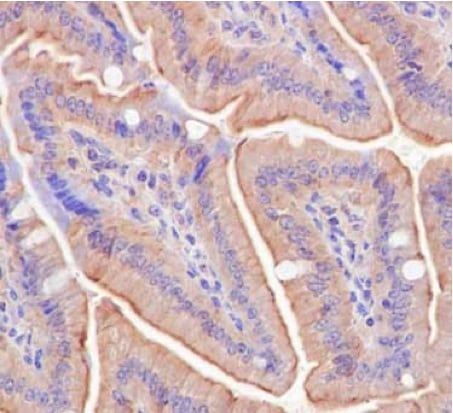 Immunohistochemistry (Formalin/PFA-fixed paraffin-embedded sections) - Anti-ATG16L1 antibody [EPR15638] - BSA and Azide free (ab232636)
