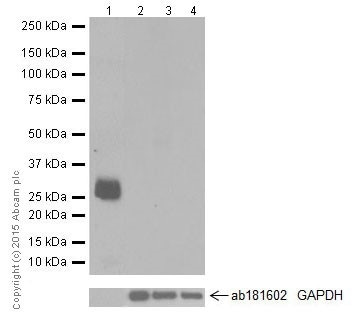 Western blot - Anti-beta Casein antibody [EPR12179] - BSA and Azide free (ab232662)