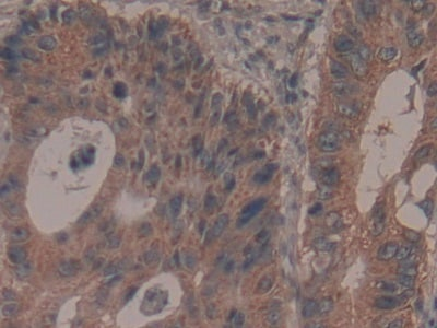 Immunohistochemistry (Formalin/PFA-fixed paraffin-embedded sections) - Anti-GARS antibody (ab232682)