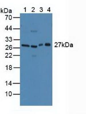Western blot - Anti-CLEC10A antibody (ab232683)