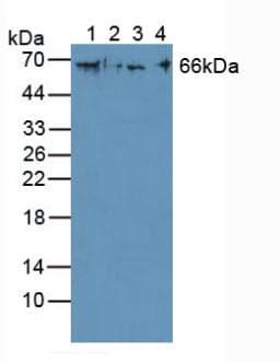 Western blot - Anti-Cytokeratin 1 antibody (ab232685)