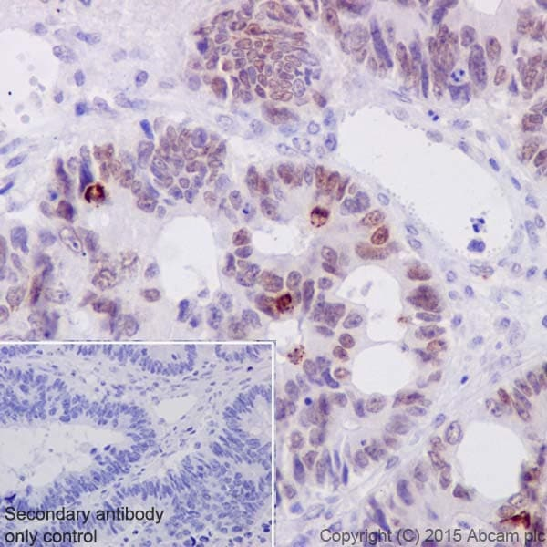 Immunohistochemistry (Formalin/PFA-fixed paraffin-embedded sections) - Anti-c-Myc (phospho S62) antibody [EPR17924] - BSA and Azide free (ab232691)