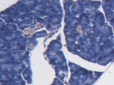 Immunohistochemistry (Formalin/PFA-fixed paraffin-embedded sections) - Anti-BCAT1 antibody (ab232700)