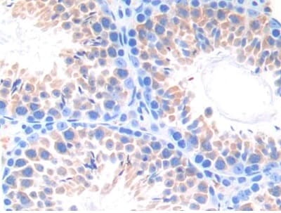 Immunohistochemistry (Formalin/PFA-fixed paraffin-embedded sections) - Anti-CYP21A2 antibody (ab232701)