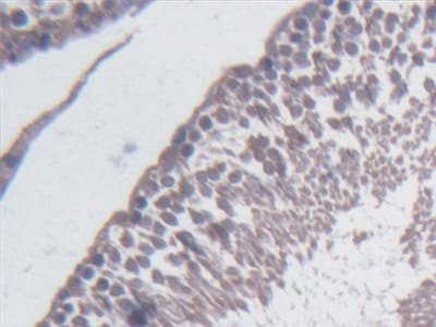 Immunohistochemistry (Formalin/PFA-fixed paraffin-embedded sections) - Anti-BCAT1 antibody (ab232706)