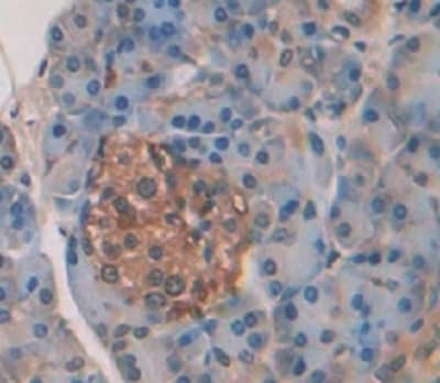Immunohistochemistry (Formalin/PFA-fixed paraffin-embedded sections) - Anti-Elastase 3A antibody (ab232708)