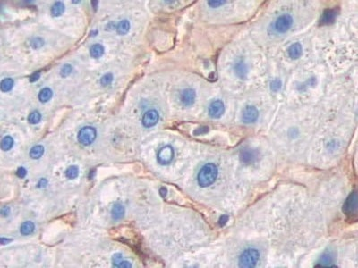 Immunohistochemistry (Formalin/PFA-fixed paraffin-embedded sections) - Anti-DC-SIGNR antibody (ab232709)