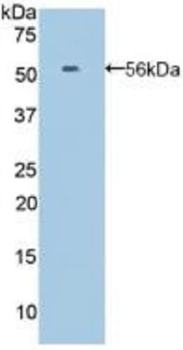 Western blot - Anti-Ephrin A4 antibody (ab232711)