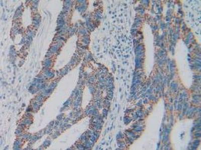 Immunohistochemistry (Formalin/PFA-fixed paraffin-embedded sections) - Anti-GC1q R antibody (ab232712)