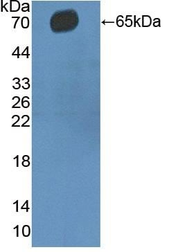Western blot - Anti-CD5 antibody (ab232713)