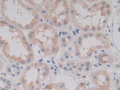 Immunohistochemistry (Formalin/PFA-fixed paraffin-embedded sections) - Anti-PCPE-2 antibody (ab232721)