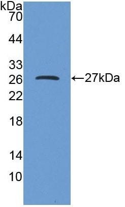 Western blot - Anti-DPP6 antibody (ab232722)