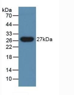 Western blot - Anti-PGRPS antibody (ab232728)