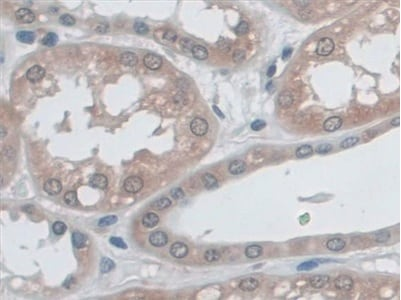 Immunohistochemistry (Formalin/PFA-fixed paraffin-embedded sections) - Anti-HLA B antibody (ab232741)
