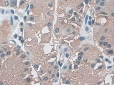 Immunohistochemistry (Formalin/PFA-fixed paraffin-embedded sections) - Anti-HLA B antibody (ab232741)