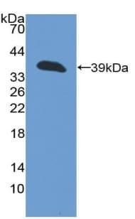 Western blot - Anti-Cytokeratin 13 antibody (ab232742)