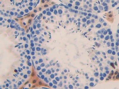 Immunohistochemistry (Formalin/PFA-fixed paraffin-embedded sections) - Anti-FRA1 antibody (ab232745)