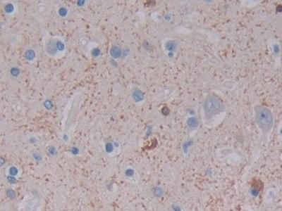 Immunohistochemistry (Formalin/PFA-fixed paraffin-embedded sections) - Anti-Ferritin Light Chain antibody (ab232752)