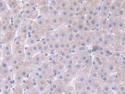 Immunohistochemistry (Formalin/PFA-fixed paraffin-embedded sections) - Anti-Cdk2 antibody (ab232753)