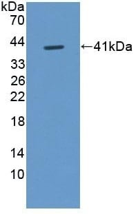 Western blot - Anti-FIGN/Fidgetin antibody (ab232756)