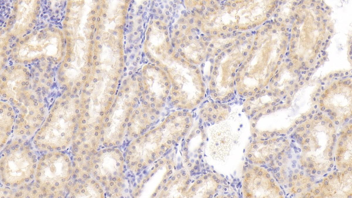 Immunohistochemistry (Formalin/PFA-fixed paraffin-embedded sections) - Anti-FIGN/Fidgetin antibody (ab232756)