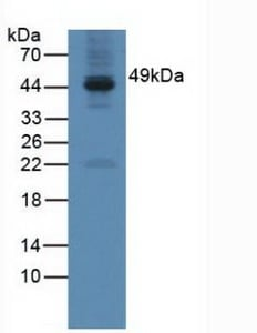 Western blot - Anti-GAL3ST1/Cerebroside sulfotransferase antibody (ab232758)