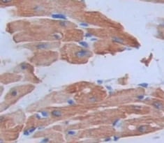 Immunohistochemistry (Formalin/PFA-fixed paraffin-embedded sections) - Anti-FSTL3 antibody (ab232761)
