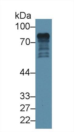 Western blot - Anti-Epsin 1 antibody (ab232764)
