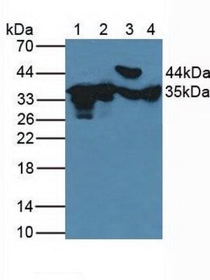 Western blot - Anti-FN3K antibody (ab232766)