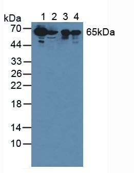 Western blot - Anti-SBSN antibody (ab232771)