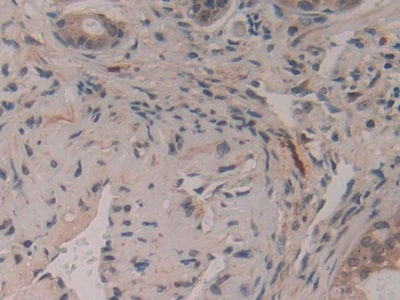 Immunohistochemistry (Formalin/PFA-fixed paraffin-embedded sections) - Anti-GAP43 antibody (ab232772)