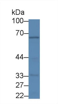 Western blot - Anti-PIDD1 antibody (ab232773)