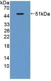 Western blot - Anti-ACP6 antibody (ab232776)