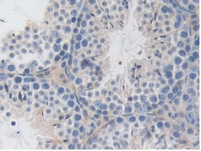 Immunohistochemistry (Formalin/PFA-fixed paraffin-embedded sections) - Anti-LSR antibody (ab232780)