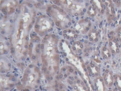 Immunohistochemistry (Formalin/PFA-fixed paraffin-embedded sections) - Anti-LPAP antibody (ab232783)