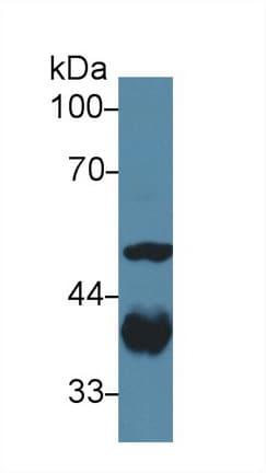 Western blot - Anti-Aldolase antibody (ab232786)