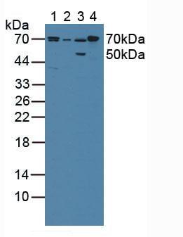 Western blot - Anti-Cytochrome P450 Reductase antibody (ab232788)