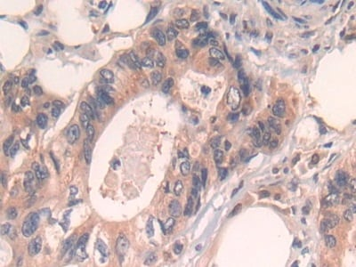 Immunohistochemistry (Formalin/PFA-fixed paraffin-embedded sections) - Anti-Cytochrome P450 Reductase antibody (ab232788)