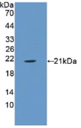 Western blot - Anti-Annexin A1/ANXA1 antibody (ab232790)