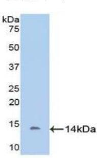 Western blot - Anti-DDO antibody (ab232792)