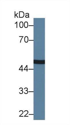 Western blot - Anti-CPN1 antibody (ab232802)
