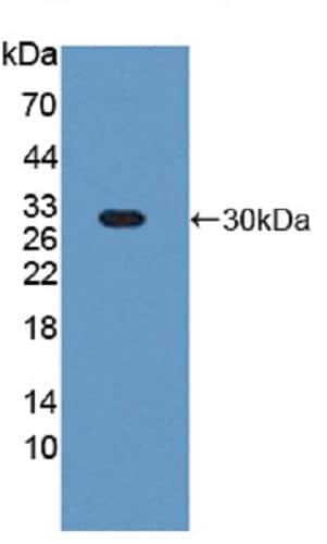 Western blot - Anti-HIP1R antibody (ab232808)