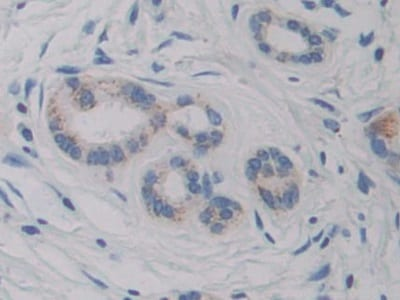 Immunohistochemistry (Formalin/PFA-fixed paraffin-embedded sections) - Anti-CYP21A2 antibody (ab232809)
