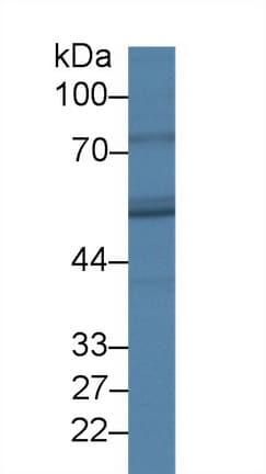 Western blot - Anti-FADS3 antibody (ab232810)